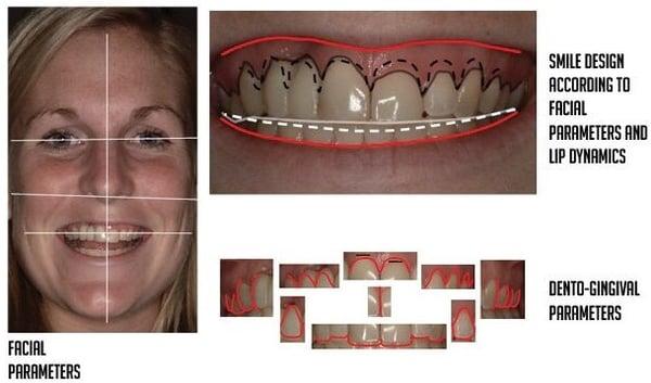 3 steps of facially driven smile design