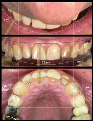 3 basic frontal views