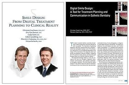 smile design: from digital treatment planning to clinical reality