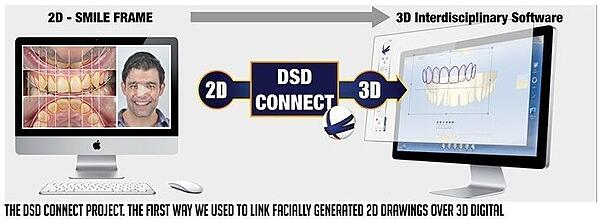 The DSD Connect Project