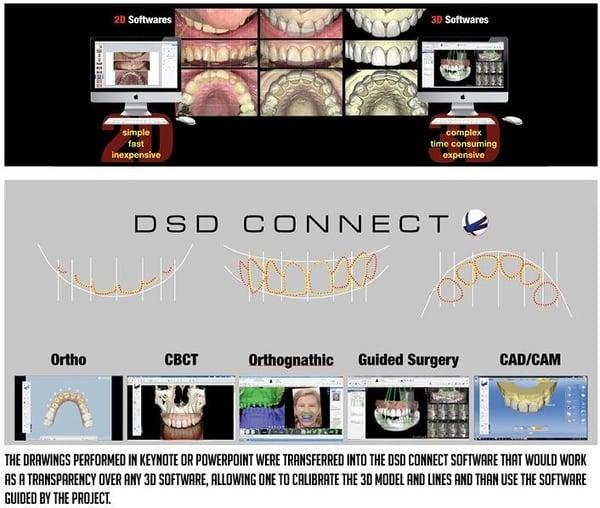 dsd connect