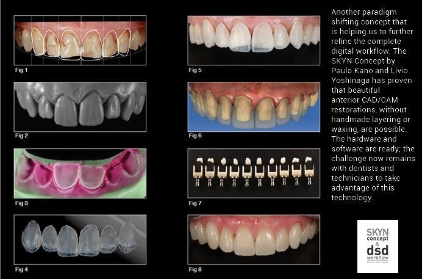 Smile Design Evolution