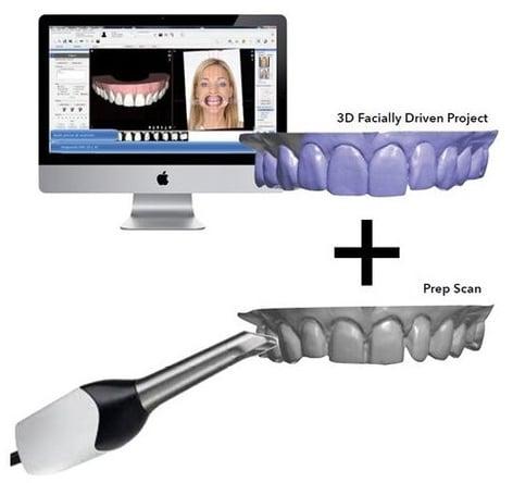3D facially driven project + prep scan