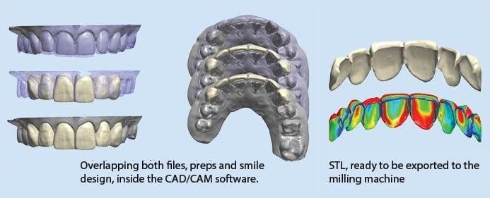 CAD/CAM restorations